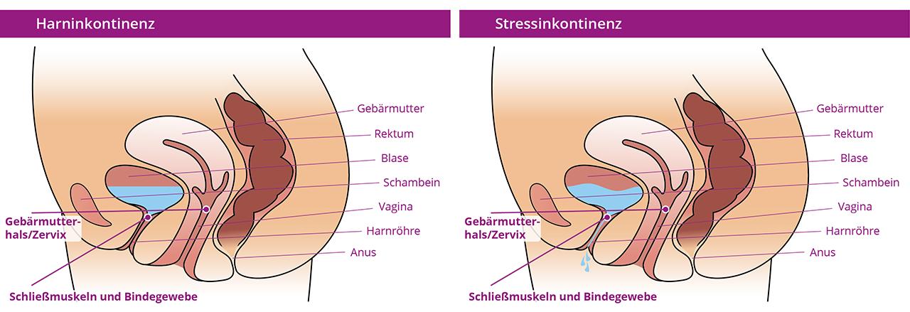 restifem • back to balance • Belastungsharninkontinenz