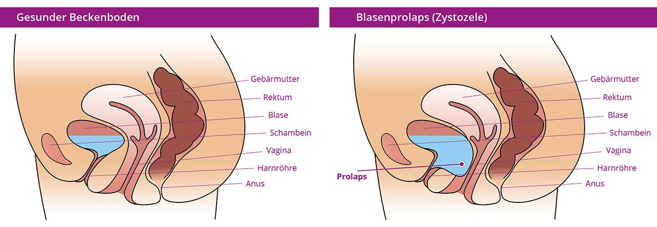 Illustration restifem Blasenprolaps