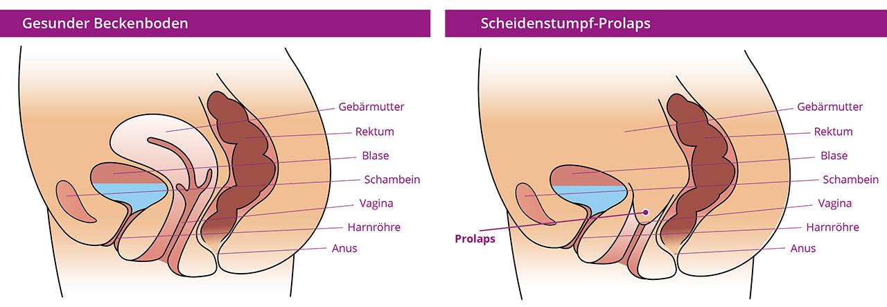 Illustration restifem Scheidenstumpf Prolaps